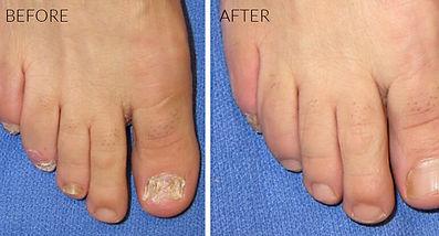 Fungal Nail Treatment at Body tlc