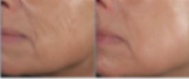 Diode Skin Rejuvenation at Body TLC