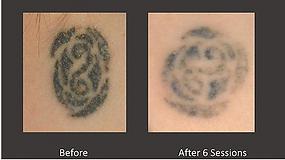 Laser Tattoo Removal a Body TLC