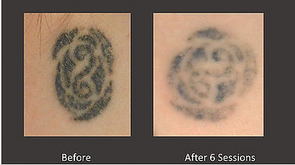 Laser Tattoo Removal at Body TLC