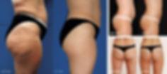 Ultrasonic Cavitation at Body TLC