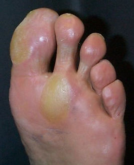 Calluses on the sole of a foot