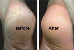 Hard skin on heels