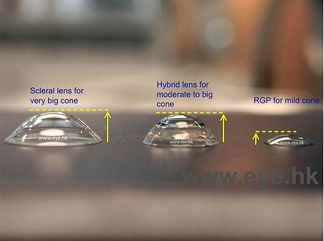 keratoconus contatct lens options