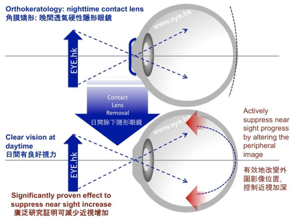 orthok induced defocus control myopia
