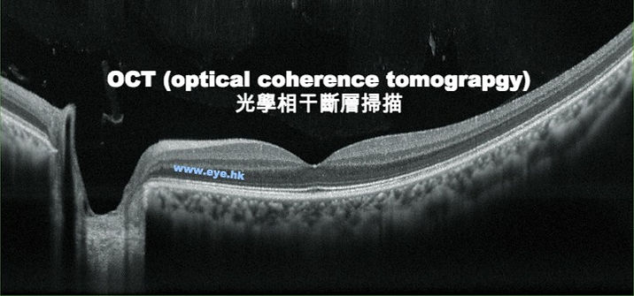 OCT optical coherence tomography -retinal scan