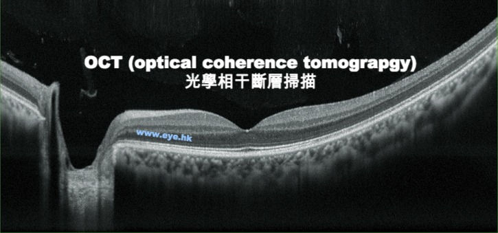 OCT optical coherence tomography -retinal scan