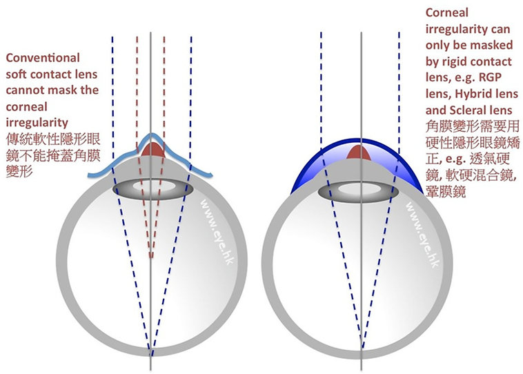 keratoconus and scleral lens