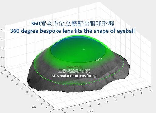 sMap3D scleral 2.jpg