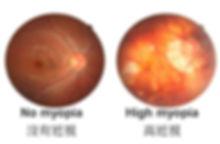 myopia degeneration