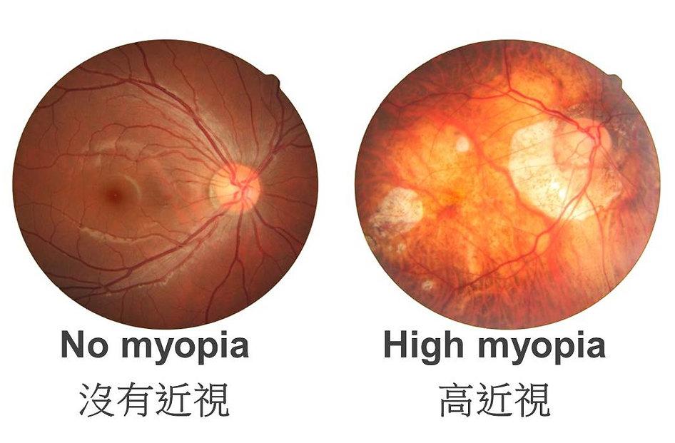 眼睛視光檢查