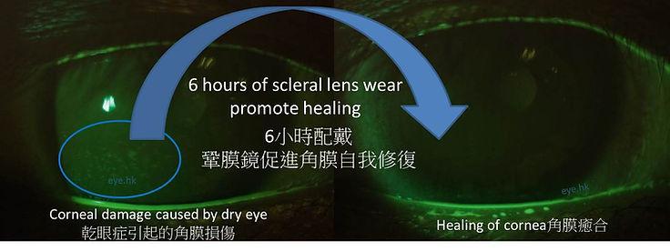 scleral lens dry eye.jpg
