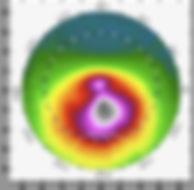 錐形角膜 OCT