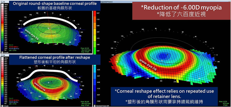 orthokeratology reduced 6D myopia