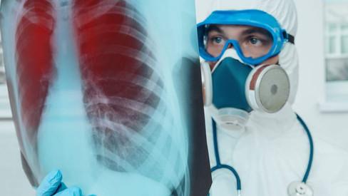 Coronavirus: descubren cómo evitar que el Covid se reproduzca en los pulmones