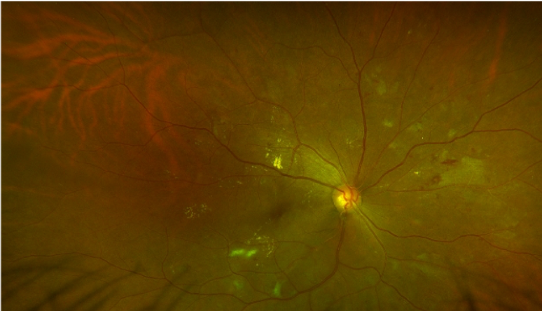 Healtheia fundus photo2.png