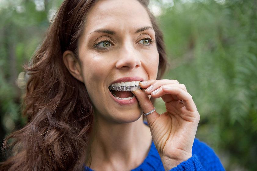 Invisalign Zahnkorrektur Venosta
