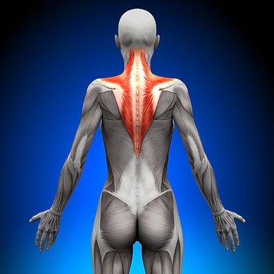 Nackenschmerzen1