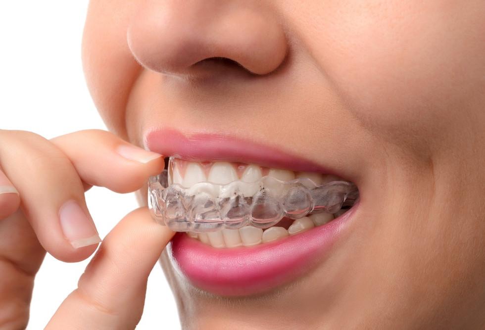 invisalign Zahnkorrektur