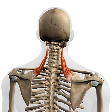 Nackenschmerzen2