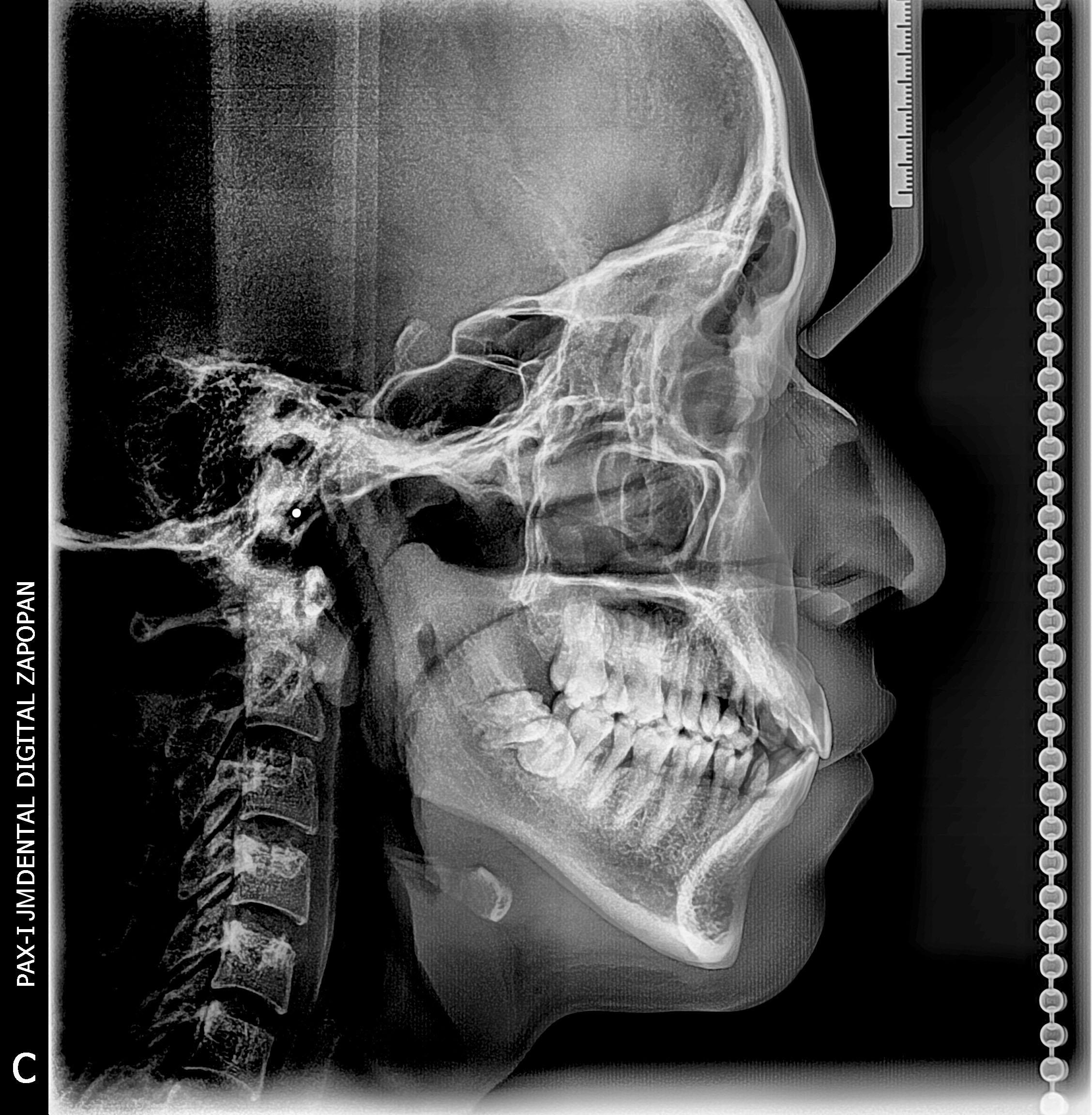Lateral de Cráneo