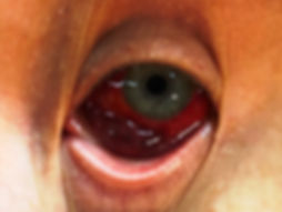 Баротравма глаза, eye barotrauma