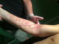 Наложены кожные швы
