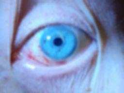 Пневмо баротравма глаза