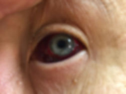 Eye barotrauma in 24 hours, баротравма глаза через сутки