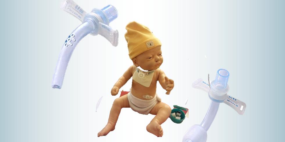 Tracheostomia pediatrica e cannule tracheali nella pratica Logopedica