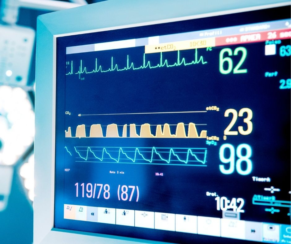 Picture of a patients vitals on a monitor