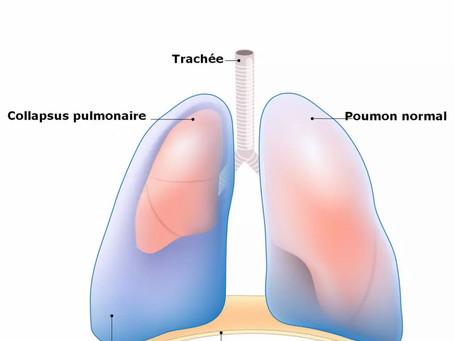 LE PNEUMOTHORAX, L'HÉMO-PNEUMOTHORAX,  LES NOTIONS DE BLAST.