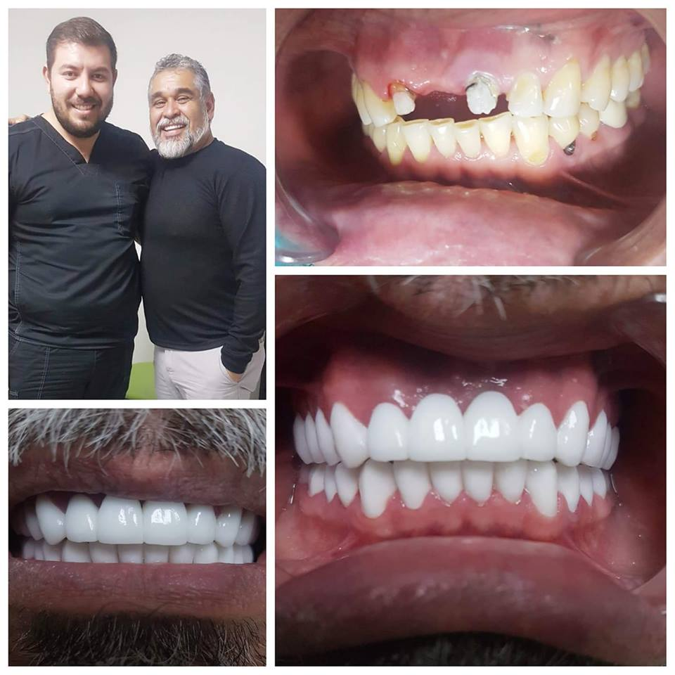 Javier with Zirconium crowns