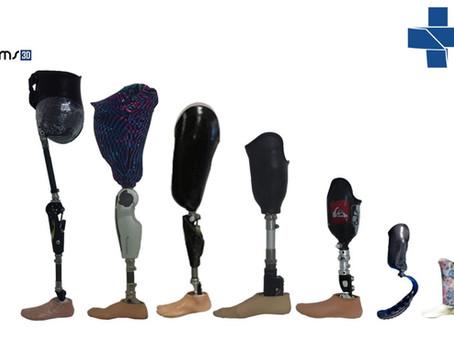 Como obter uma prótese pelo SUS?