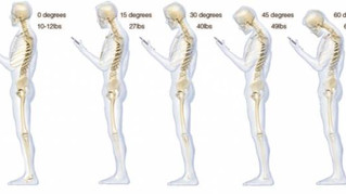 Is Your Mobile Phone Causing You Neck Pain?
