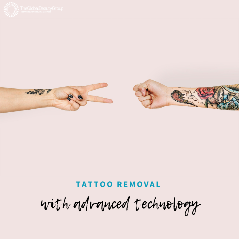 Pain-Free-Tattoo-removal.png