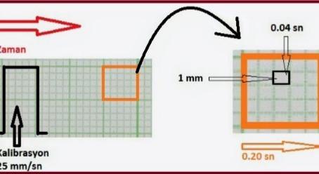 EKG Kağıdı ve Üzerindeki Karelerin Anlamı
