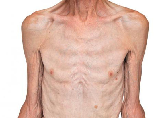 sintomas-desnutricion.jpg
