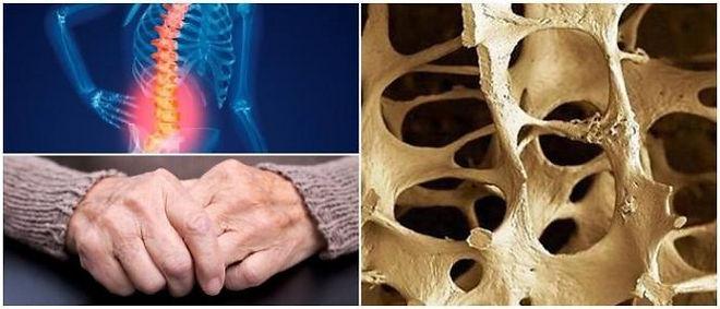 osteoporosis-665x285.jpg