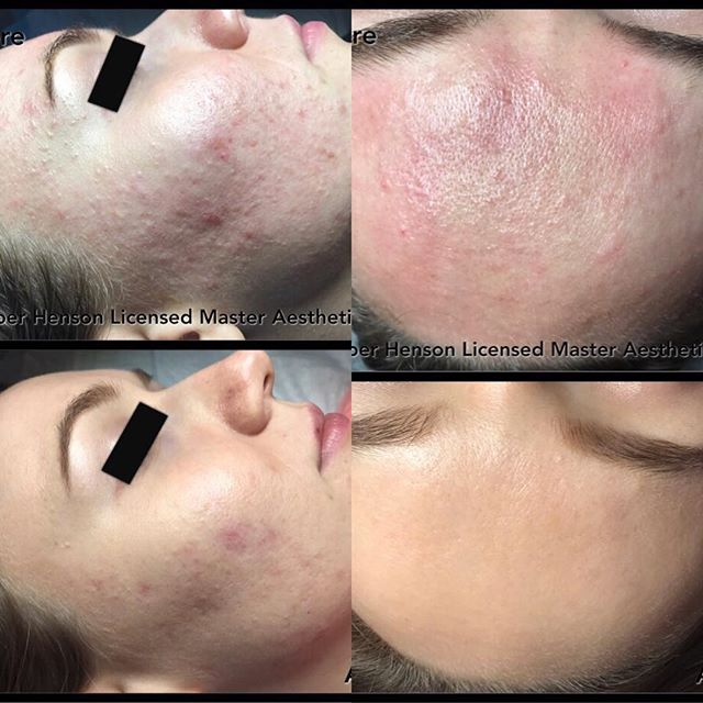 Acne Treatment by Amber