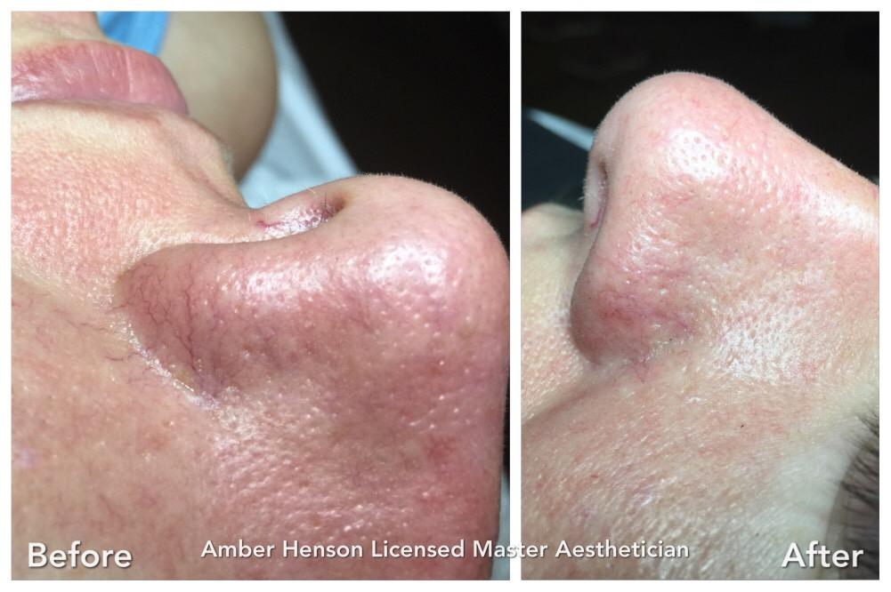 Skin Classic Treatment