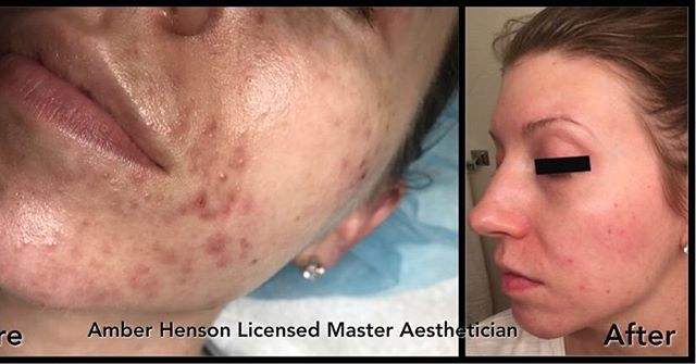 Acne Treatment by ASH Skin