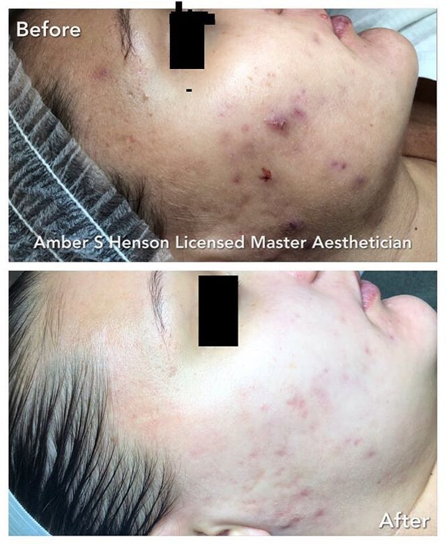 Adult Acne Treatment by Amber