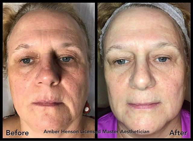 Age Well Facial Treatment by ASH Skin