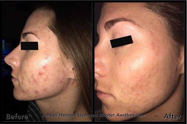 Distance Acne Treatment follow up pics. April 2017-July 2017
