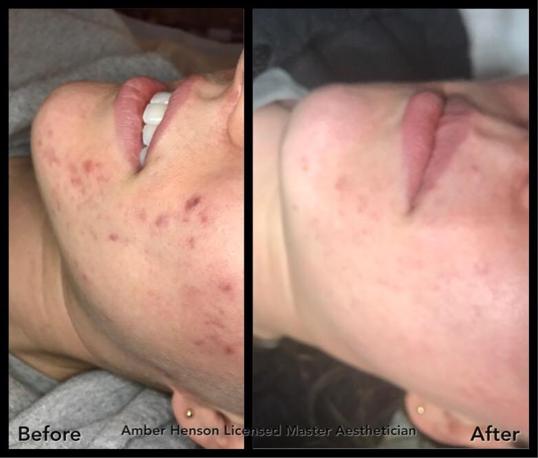 Acne Treatment by ASH Skin