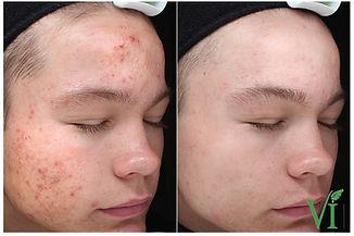 VI Peel resultaat acne