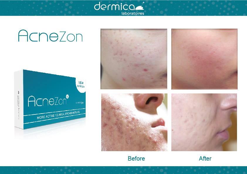 Dermica microneedling voor&na 4.jpg