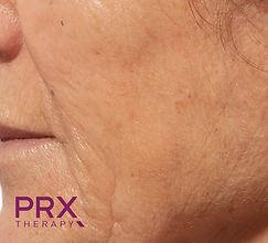 PRX-T33 na behandeling.jpg