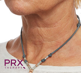 Neck (A) AFTER (1 session PRX-T33).jpg
